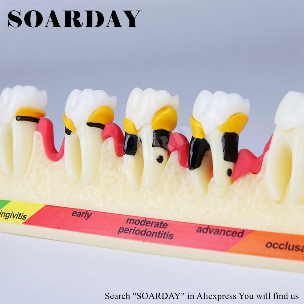 Dental Periodontal enfermedad modelo de clasificación que enfermedad Periodontal progreso dentista modelo