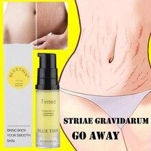 Natural suave não-irritante estrias creme de reparação de gravidez cicatriz linha de folga abdômen estrias creme de reparação tslm2