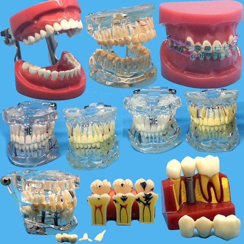 Vários modelos de dentes dentários são usados para ensinar e material de dentista do hospital
