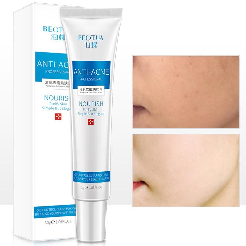 30g rostro Scream blanqueamiento cuidado de la piel crema de tratamiento antiacné de control de Aceite hidratante eliminador de cicatrices de acné los poros Crema para el acné