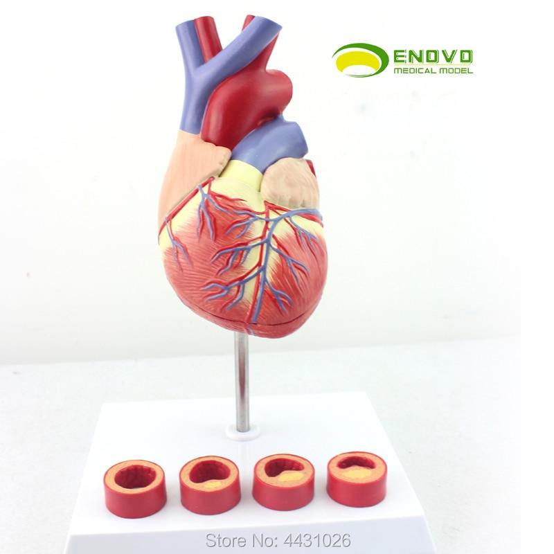 ENOVO 1-1 medical human heart model coronary thrombosis cardiology teaching arteriosclerosis