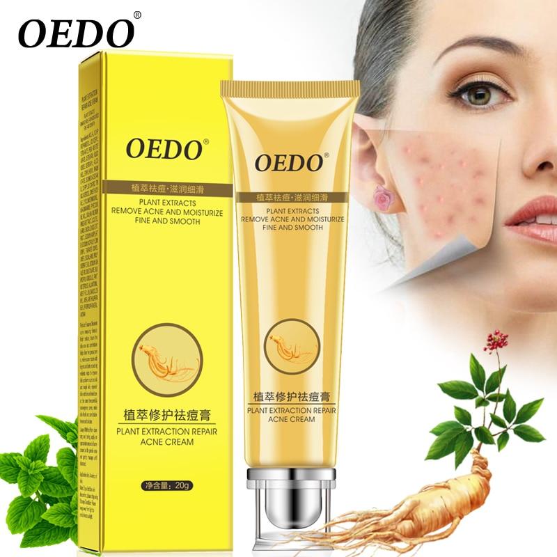 Creme Acne Scutellariae Extrato do Ginseng Reparação Ance Tratamento Facial do Cuidado Da Pele Creme de Clareamento Cuidados Faciais 20g