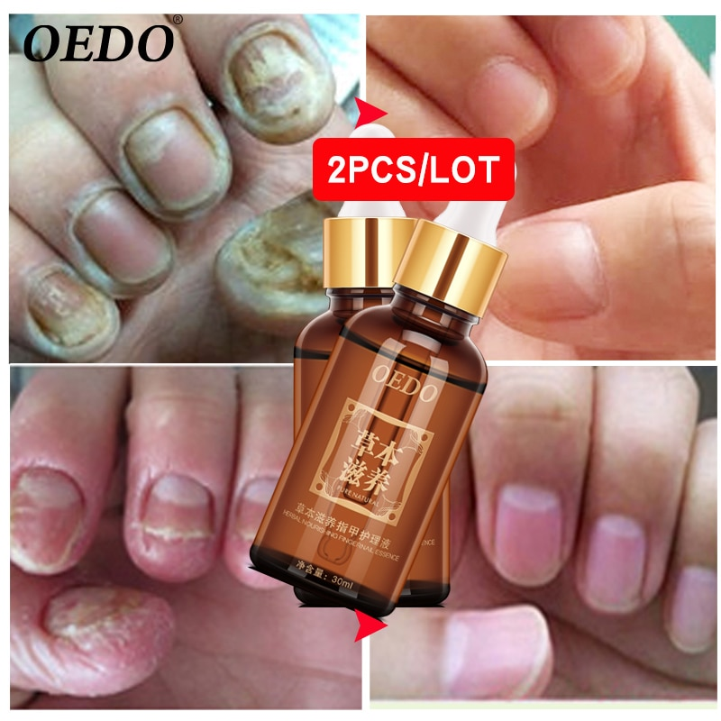 2 unids/lote de aceite esencial para el cuidado de las uñas, blanqueamiento de manos y pies, hongos para las uñas de los pies para eliminar el cuidado de los pies, gel de uñas brillante