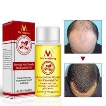 20ml Haargroei Producten Gember Olie Haargroei Sneller Groeien Haar Gember Stop Haaruitval Behandeling