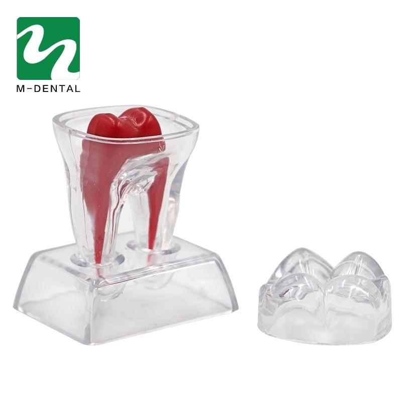 1 unidad de modelo molar de diente, patología Separable, modelo de demostración, Material de odontología transparente, herramientas de dentista para laboratorio Dental
