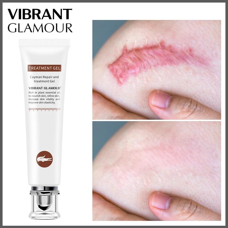 Vibrant Glamour Crocodile Dispel Scar Repair Face Gel Remove Acne Scar Stretch Marks Treatment Skin Lightening Whitening Care Serum Aliexpress