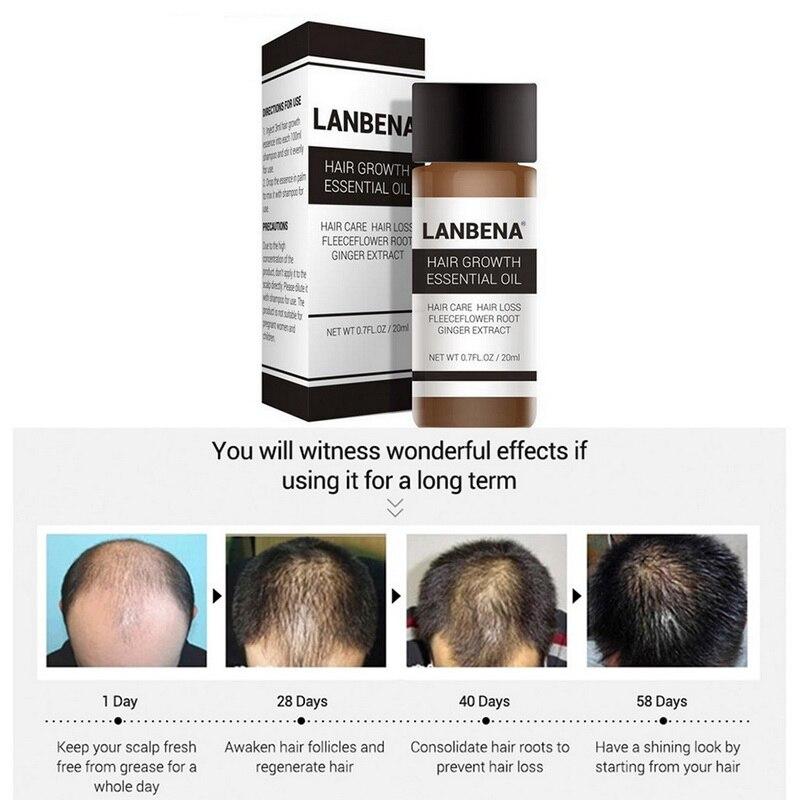 LANBENA 20ml, esencia para el crecimiento del cabello, aceite esencial de gran...