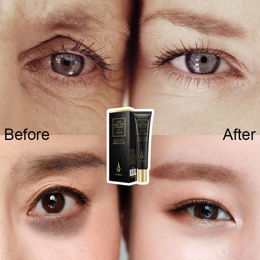 LAIKOU Eye Cream Hyaluronic Acid Eye Serum Wrinkle Anti-Wrinkle Snail Remover Dark Circles Eye Gel Remove Eye Bag Anti Puffiness недорого