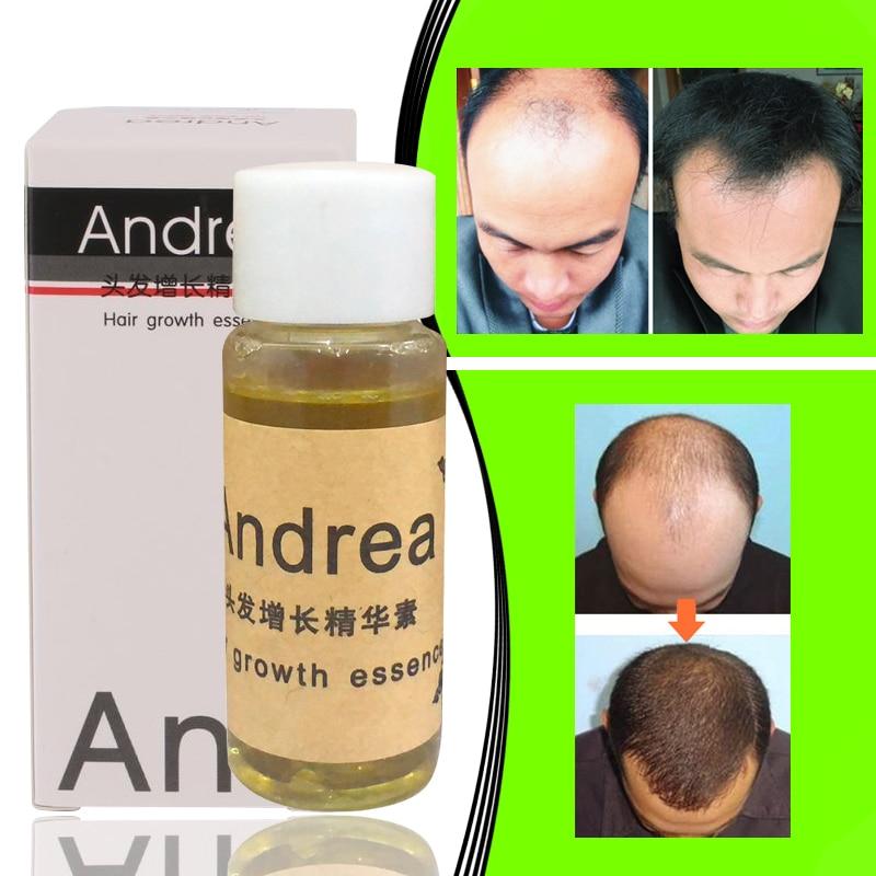 1PCS Andrea Hair Growth essence Anti Hair Loss Product Shampoo 30ml Natural Hair regrowth Fast,Thick