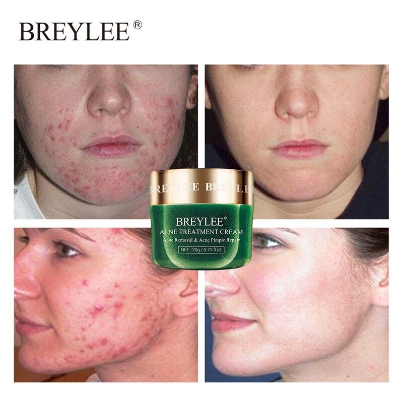 Breylee creme de tratamento para acne, creme de tratamento para acne e remoção de espinhas, limpeza da pele, clareamento e remoção de espinhas