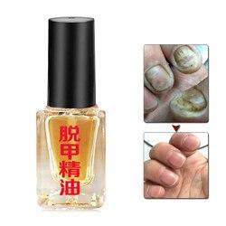 Óleo de essência fúngica erval do prego clareamento brilhando dedo do pé unha remoção fungo mão pés cuidados unha polonês tratamento líquido do prego
