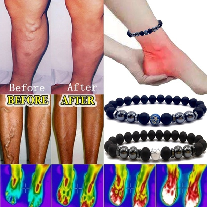 Weight Loss Magnet Anklet Colorful Stone Magnetic Therapy Bracelet Weight Loss Product Slimming Heal