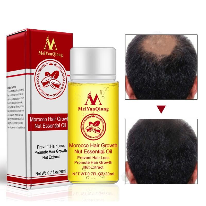 MeiYanQiong 20ML Fast Powerful Hair Growth Essence Hair Loss Products Essential Oil Liquid Treatment
