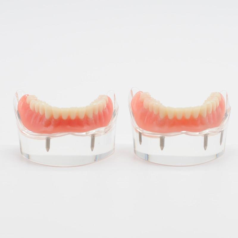 Laboratorio Dental inferior Mandibular con 2/4 implantes, modelo de enseñanza de restauración para artículos de clínica de odontología