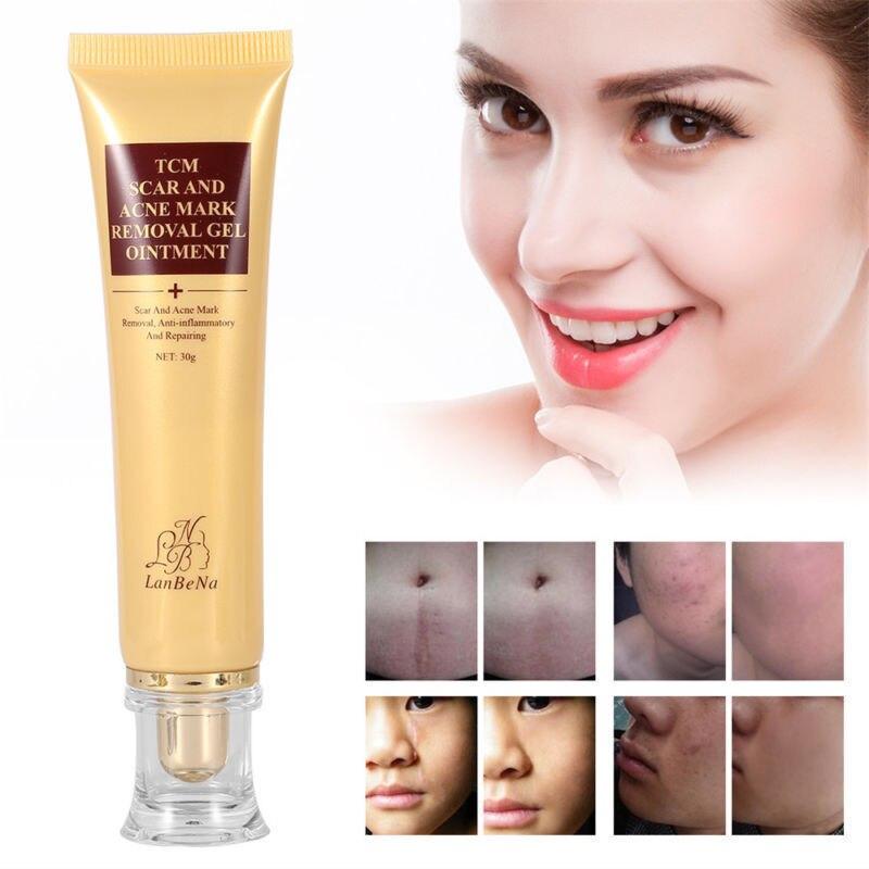 Eliminación de cicatrices Facial espinillas acné cuidado de la piel crema blanqueadora Extracto de Ginseng contra puntos negros crema curación de cicatrices TSLM1