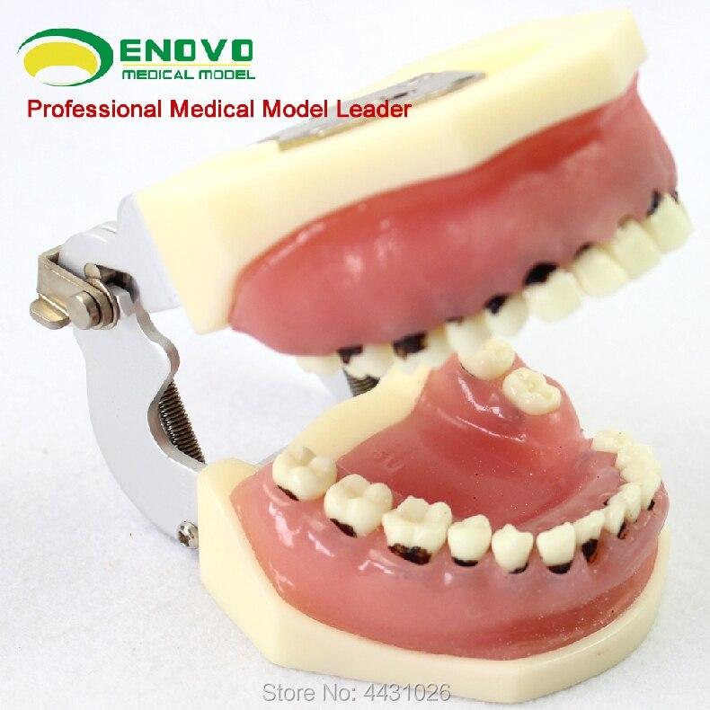 ENOVO Dental calculus of severe periodontal disease model of dental calculus