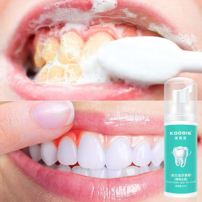 Pasta dental blanqueadora de dientes con perlas, pasta dental de higiene bucal...