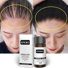 Efero Heißer Haarausfall Behandlung Serum Anti-Haarausfall Serum Ätherische Öle Dichten Haar Wachstum Serum Haarpflege Verhindern haarausfall TSLM1