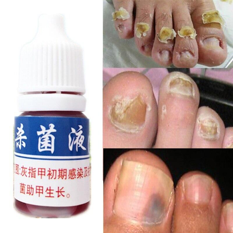La lucha contra la infección por hongos de uñas tratamiento líquido pie cuidado blanqueamiento en esencia eliminación de hongos de las uñas de los pies Gel paroniquia onicomicosis