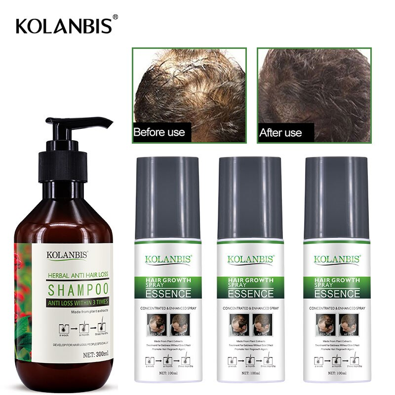 4 Uds. De champú para la pérdida de cabello, tónico y ginseng con aerosol calva y crecimiento aceitoso para alopecia hombres, aceites esenciales de tratamiento de folículo rápido