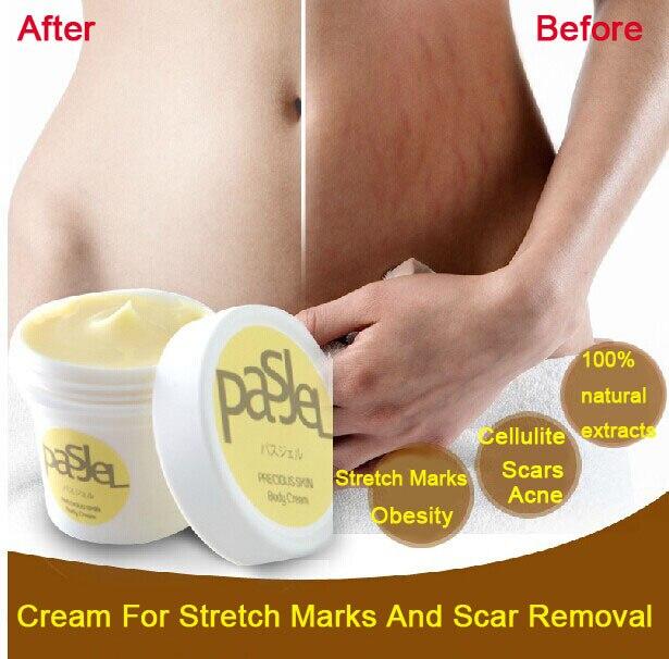2pcs Thailand Pasjel precious Skin Body Cream afy stretch marks remover scar removal powerful postpartum obesity pregnancy cream