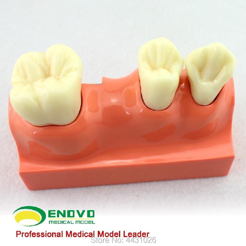 ENOVO Dental anatomical model of dental anatomy model enovo medical proteinuria model human kidney model renal corpuscle anatomy of urologic hypertension