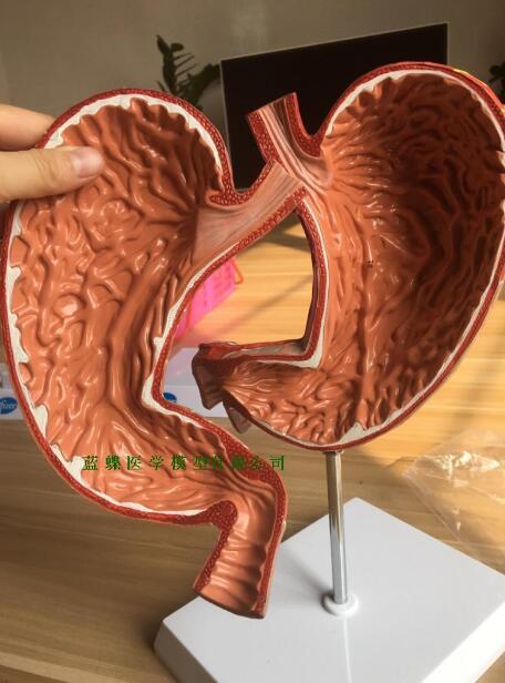 Анатомическая модель желудка человека модель пищеварительной системы модель желудка с цифровым съемным 1,5-кратным увеличением желудка