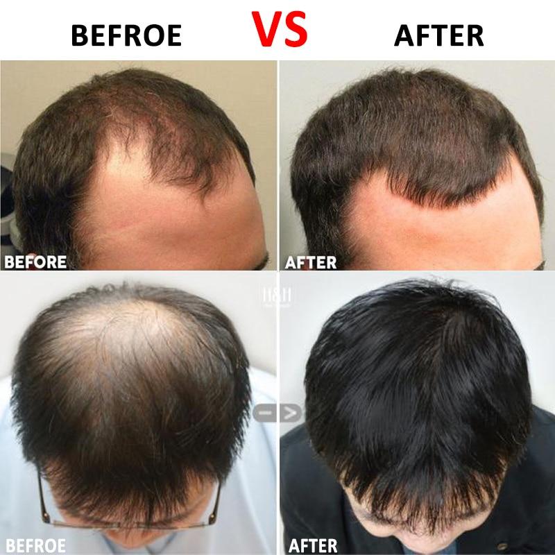 Rodillo de microaguja de titanio para el crecimiento de la cara y el cabello tratamiento antipérdida de cabello/puntos calvos/línea de cabello que se retira
