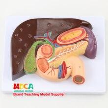 Teaching of Splenic Anatomical Model Medicine MGZ004 in Duodenal Gallstone Model of Liver Model