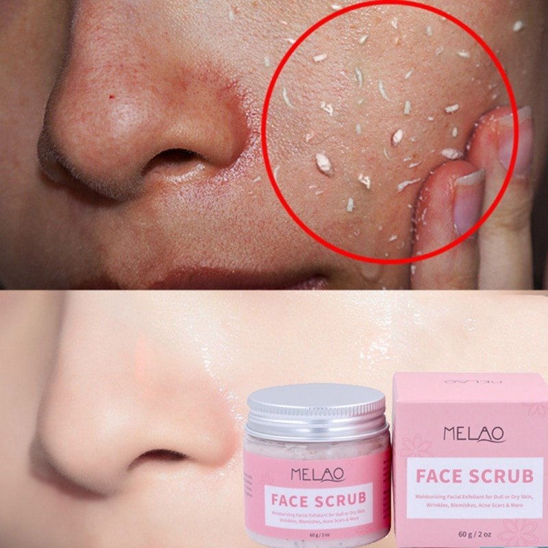 60g hidratante exfoliante Facial exfoliante arrugas Blemishe acné eliminación de cicatrices crema...