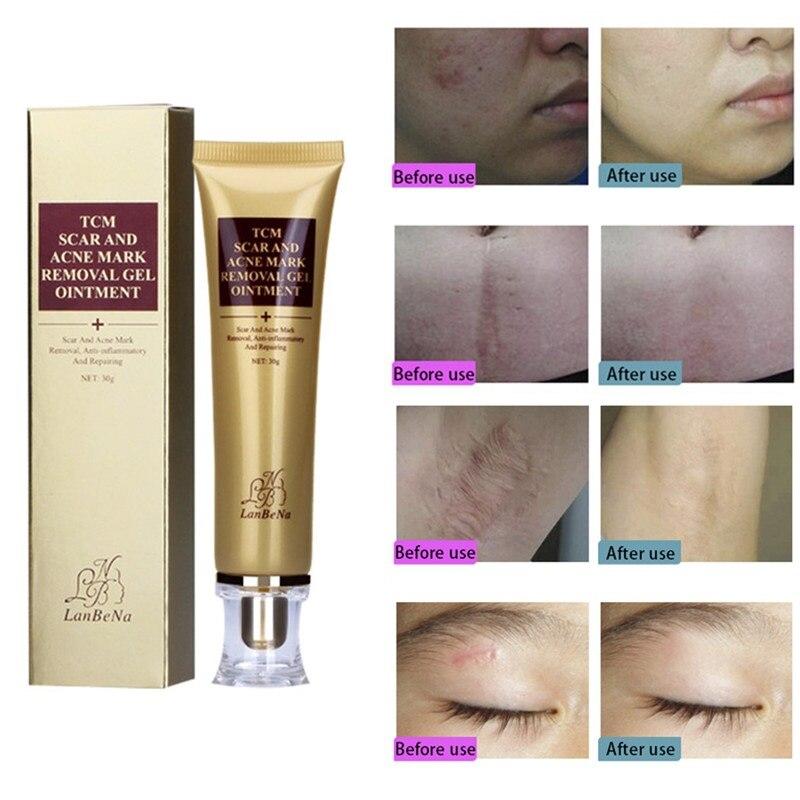 30g eliminar el acné y la piel cicatriz crema cara crema blanqueadora cicatriz de espinillas embarazo nutre y repara la crema de crema TSLM2