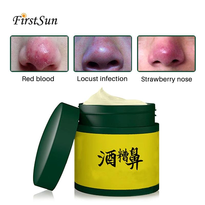 Crema para la rosácea, nariz roja, Herbal, antiácaros de la nariz, elimina el acné, removedor de espinillas, tratamiento de acné, encoge los poros, blanqueamiento facial, ungüento