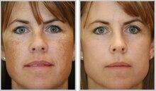 RETINOL VITAMIN A 0.05% CREAM GEL Retin Acne Anti wrinkles Blemish treatmen 20g