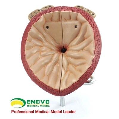 Анатомическая модель простаты может быть разделена на лист BPH, модель для обследования простаты, бесплатная доставка
