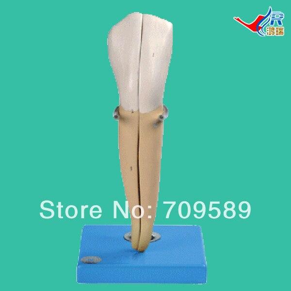 Lower Canine  Model, Teeth Model
