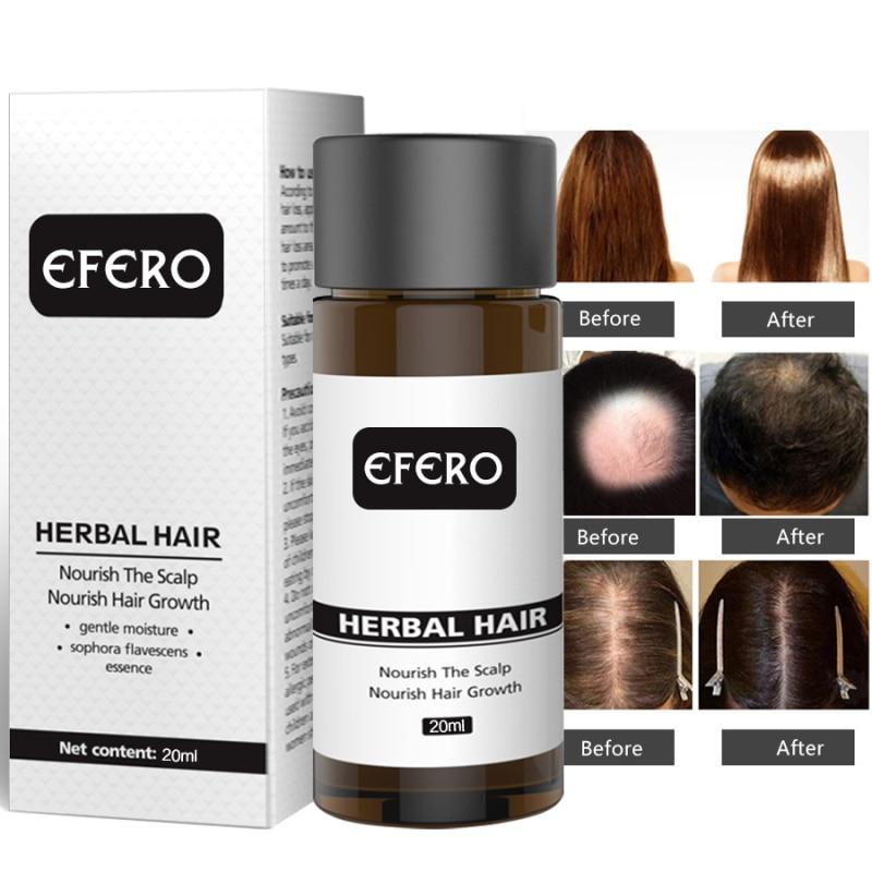 Unisex 20Ml Hair Loss Serum Essential Oils Dense Hair Growth Serum Hair Care Prevent Baldness Anti-H