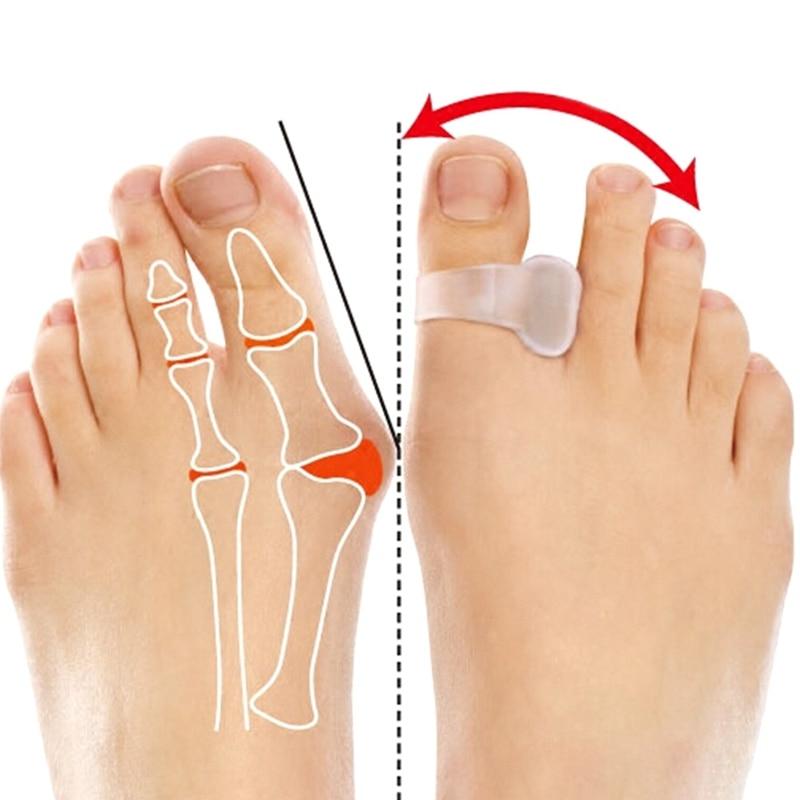 2pcs/pair Silica gel insoles orthotics toe  Straightener Bunion Protector thumb valgus Bunion Foot care