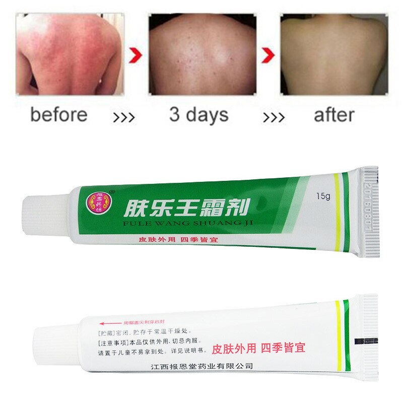 3 uds FULEWANG piel crema para la psoriasis Dermatitis Eczematoid Eczema ungüento tratamiento crema para la psoriasis sin venta al minorista caja