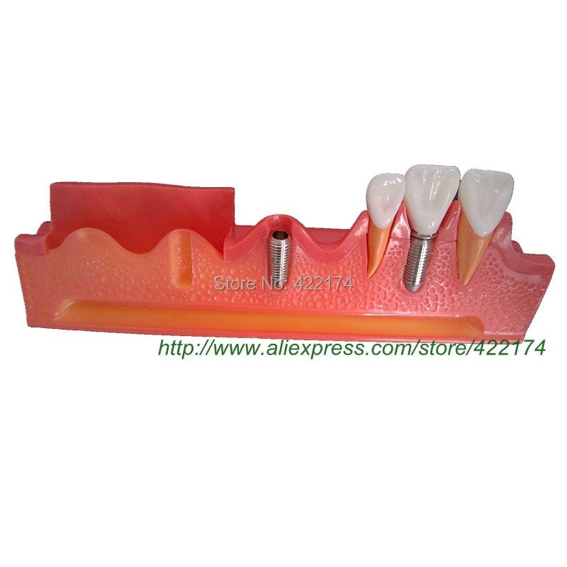 Envío Gratis, modelo de demostración de implante, diente dental, dentista, anatomía anatómica, modelo para odontologia