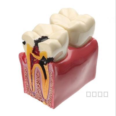 6 times teeth model caries contrast teaching model free shopping