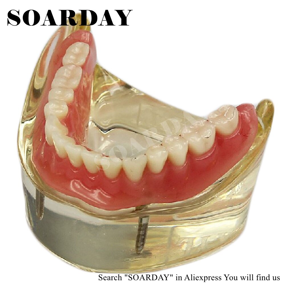 SOARDAY Dental Inferior desmontable Overdenture Inferior con 2 implantes demostración dientes anatomía patología odontología modelo de diente