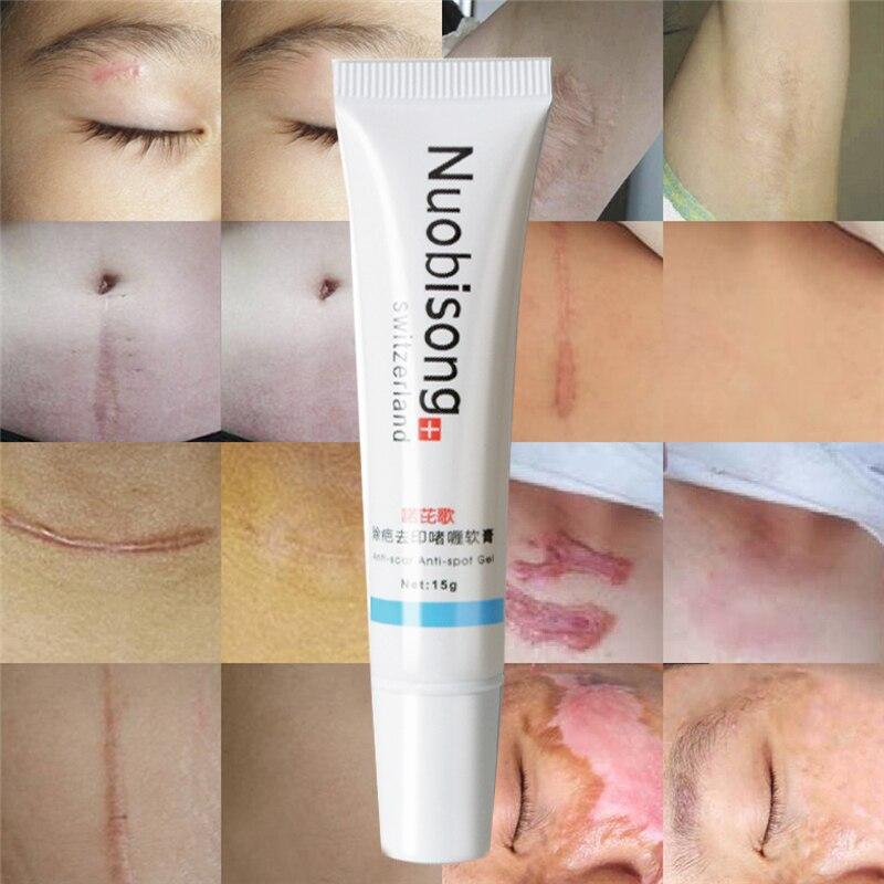 Nuobisong Remove Scar Cream Remove Acne Spots Remove Striae Gravidarum Pigmentation Corrector Anti-Aging Moisturizing 15ml