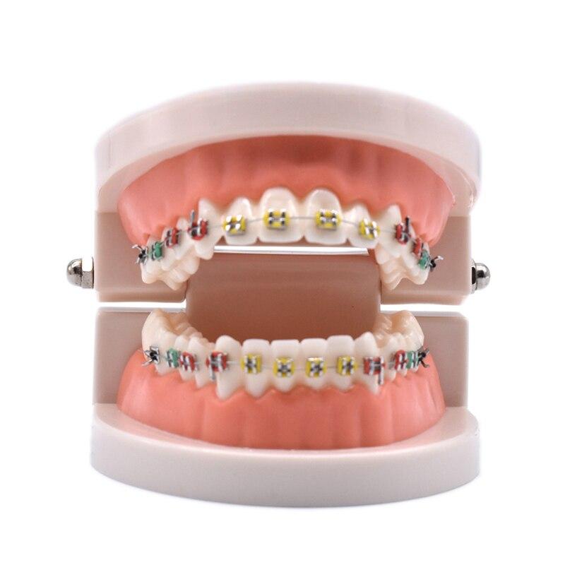 Modelo de tratamiento de ortodoncia Dental con orto Metal soporte de cerámica arco alambre tubo bucal ligaduras herramientas dentales laboratorio de dentista