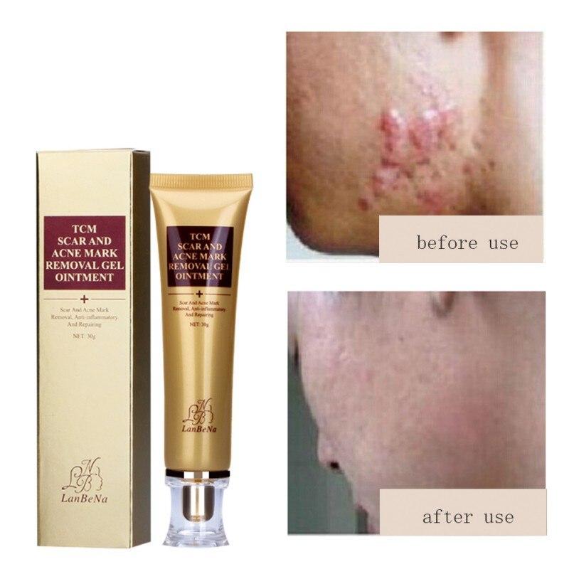 Горячая Распродажа крем для удаления шрамов от акне крем для лица для восстановления кожи Лечение Акне Отбеливающий Крем от угрей растяжки 30 мл