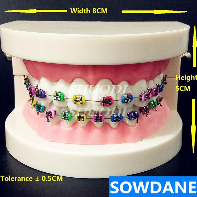 Стоматологическая Ортодонтическая лечебная модель с Орто металлическим кронштейном арочная проволочная букковая трубка Лигатура зубные ...