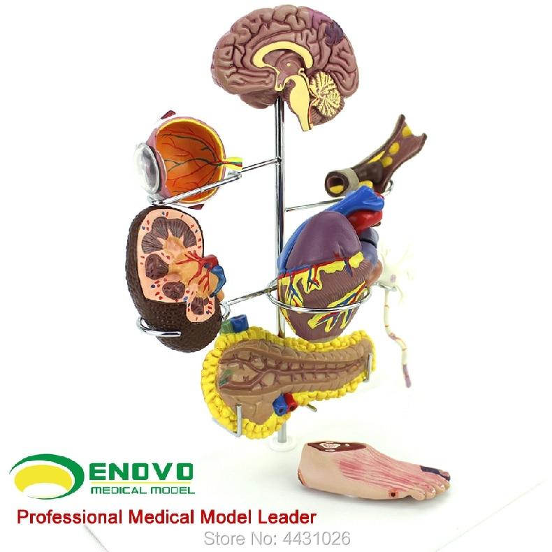 ENOVO Human medical diabetes mellitus is a complication of the cerebral heart and pancreas neurosurgery