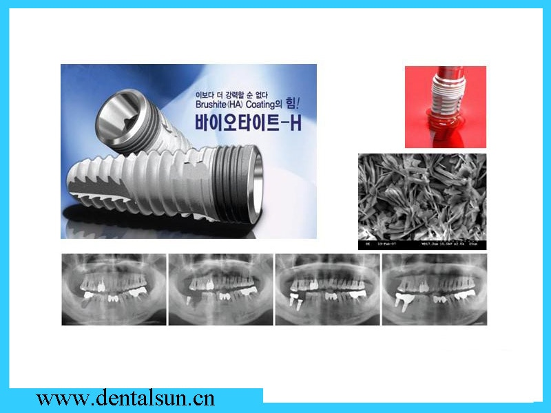 Dental Surgical Titanium Implants/DIO Dental Implants