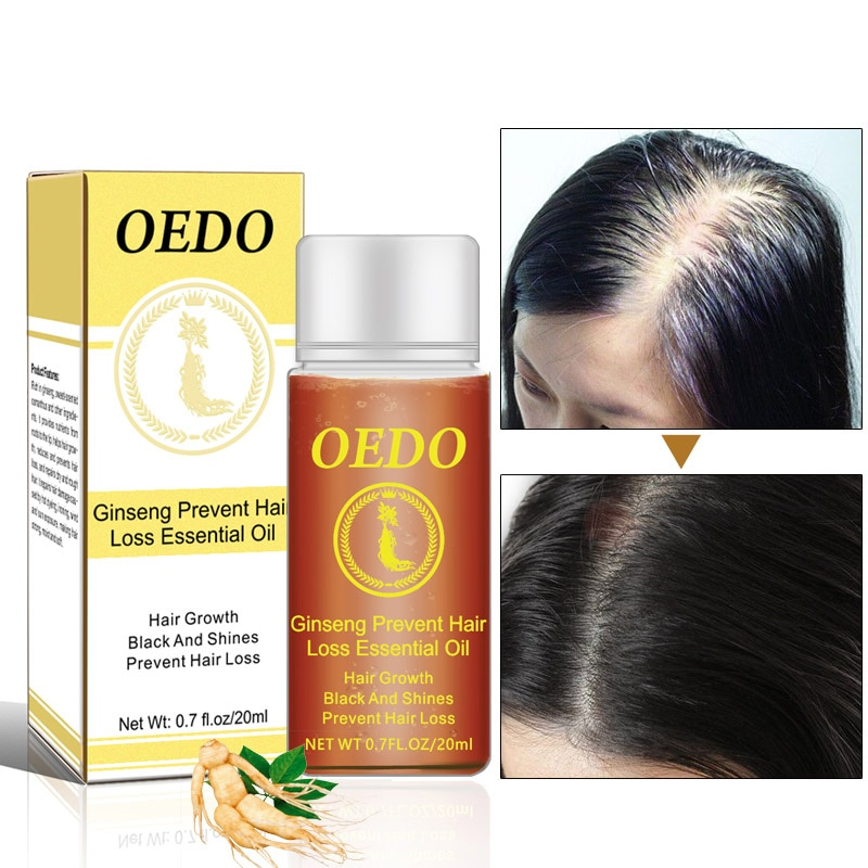 Hair Essential Oil Nourish 20ml Prevent Hair Loss Repair Damage Recovery Soft Unisex Hair Scalp Care