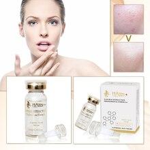Sérum acide azélaïque pour le traitement de lacné du visage meilleur contrôle de lhuile Essence de soin de la peau pour les gros Pores avant et après effet