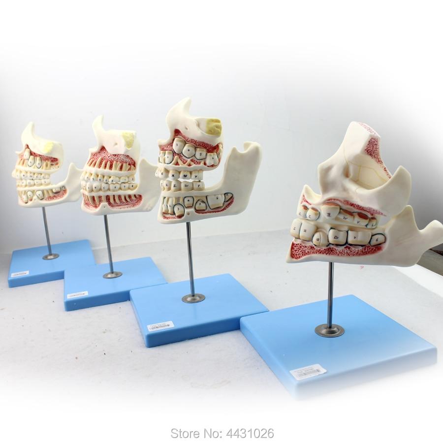 ENOVO Dental care model for children's teeth and maxillofacial development model